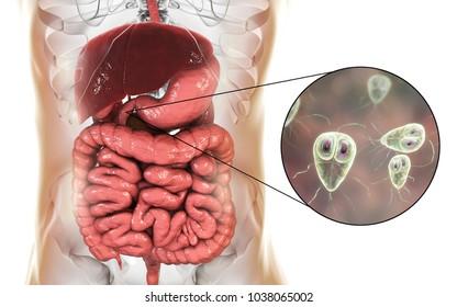 que causa la enfermedad giardiasis