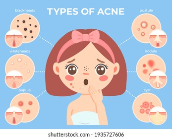 Girl with acne. Young unhappy female face with skin problems and pimple types icons. Dermatology and cosmetic skin care  infographic