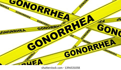 Gonorrhea. Yellow warning tapes with black words GONORRHEA (is a sexually transmitted infection caused by the bacterium Neisseria gonorrhoeae). Isolated. 3D Illustration