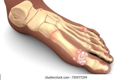 Gout in feet 3d illustration