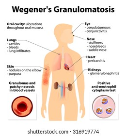 Granulomatosis or Wegener's granulomatosis is an disease, inflammation of the blood vessels (vasculitis). Autoimmune diseases. Signs and symptoms. Human silhouette with highlighted internal organs.