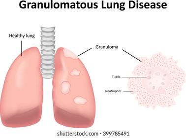 Granulomatous Lung Disease Labeled Diagram