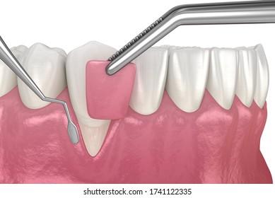 Gum Recession: Soft tissue graft surgery. 3D illustration of Dental  treatment