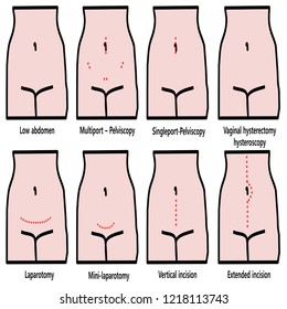 gynecological incision, laparotomy, laparoscopy