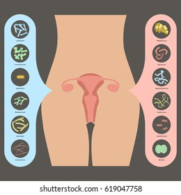 Gynecology illustration. Womans vaginal flora or microbiota in vagina, Good and Bad Bacteria Rastered copy