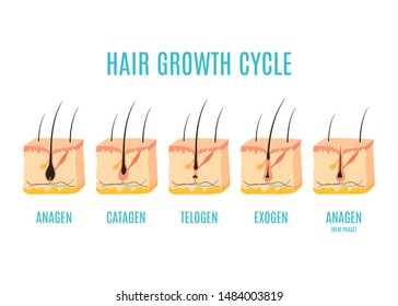 Hair growth cycle medical educational poster. Skin ross-section showing a hair follicle in anagen, telogen and catagen phases. Removal, treatment and transplantation concept.