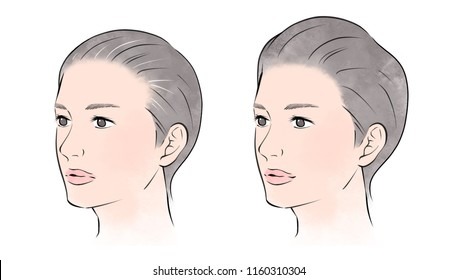 Hair loss and hair growth in women