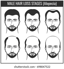 Hair loss stages and types of baldness. Man hairs problem charts. Problem with hair, illustration of hair loss