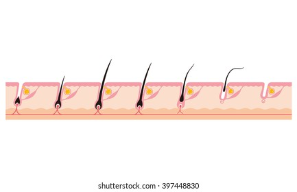 """hairs of growth """"sectional view"""""""