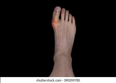 Hallux valgus, toe disease