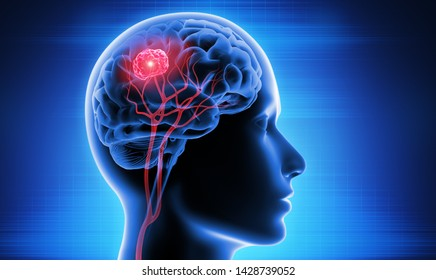 Head with brain and tumor - 3d Illustration