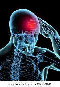 Headache 3D Xray Model