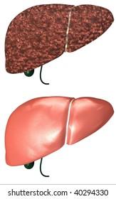 healthy and cirrhosis