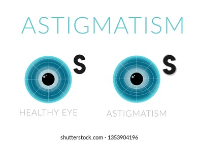 Healthy eye and astigmatism comparisons. Medical poster about eye disease. Eye blue apple on white background