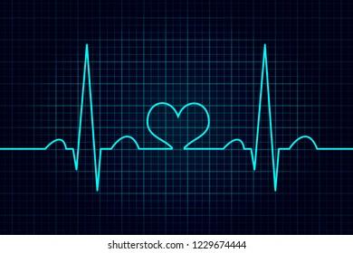 Healthy heart illustration, electrocardiogram, normal sinus rhythm