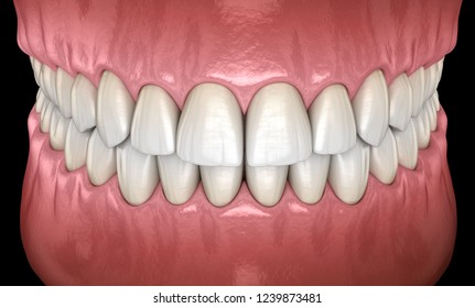 Healthy human teeth with normal occlusion frontal view. Medically accurate tooth 3D illustration