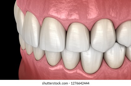 Healthy human teeth with normal occlusion, side view. Medically accurate tooth 3D illustration