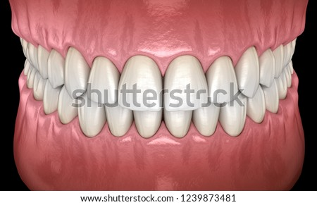 healthy human teeth normal occlusion frontal stock illustration