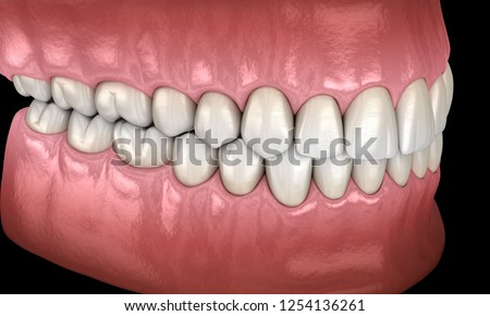 healthy human teeth normal occlusion side stock illustration