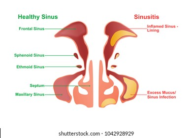 Healthy and inflammation structure respiratory nasal sinus. Study nasal sinus. Education and research nasal.