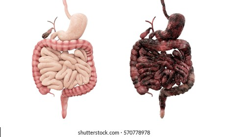 healthy intestines and disease intestines on white isolate. Autopsy medical concept. Cancer and smoking problem. 3d rendering