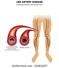 Healthy leg artery and Peripheral Arterial Disease, Atherosclerosis progression, narrowed leg artery and at the end blood clot may block artery