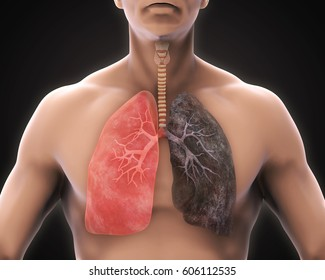 Healthy Lung and Smokers Lung. 3D rendering