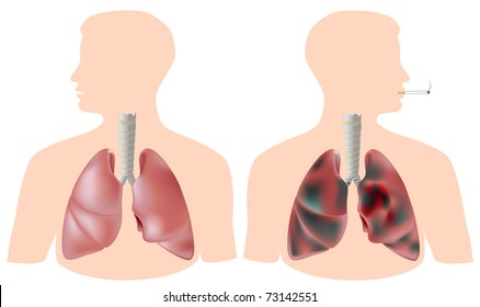 Healthy lung versus smoker's lung with tumor