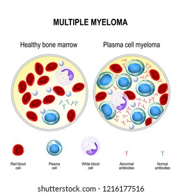 healthy plasma cells in the bone marrow mutate and multiply uncontrollably. Myeloma cells suppress the growth of healthy cells that make blood. malignant plasma cells produce a paraprotein
