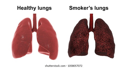 Healthy and smoker's lungs isolated on white background, medical concept, 3D illustration