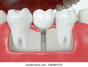 Healthy vs Tooth implant - 3D Rendering