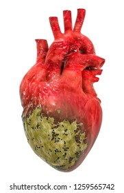 Heart disease concept, 3D rendering isolated on white background