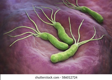 Helicobacter Pylori is a Gram-negative, microaerophilic bacterium found in the stomach. 3D illustration. 3D rendering