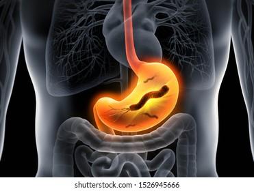 Helicobacter pylori - medical illustration - 3D illustration