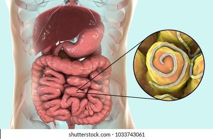 helminthiasis enterobiosis