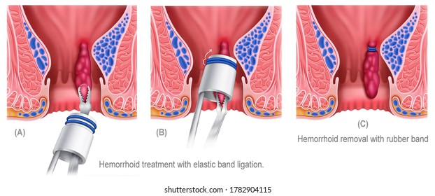 Hemorrhoid ligation with elastic band. Schematic illustration of the surgical technique for hemorrhoid removal.