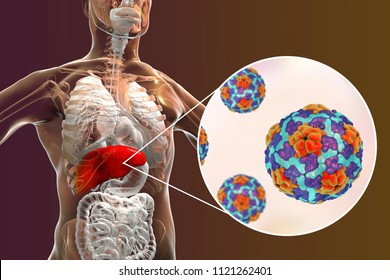 Hepatitis A viruses HAV in liver, 3D illustration. HAV infect humans through contaminated water, food and dirty hands through intestine they come to liver and cause hepatitis