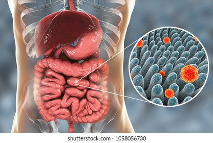 Hepatitis A viruses  in small intestine, 3D illustration. HAV infect humans through contaminated water, food and dirty hands, through intestine they come to liver and cause hepatitis