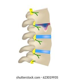 Hernia Schmorl. Intervertebral disc. Side view. Spine. Infographics. illustration on isolated background