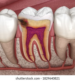 Hidden caries in to molar tooth. Medically accurate 3D illustration