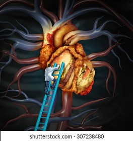 High Cholesterol treatment and medical therapy as a doctor on a ladder cleaning a problem heart made of greasy fast food or a surgeon removing fat buildup in a clogged human organ.