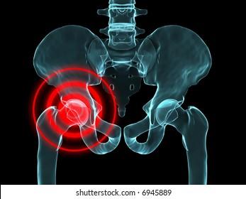 hip inflammation