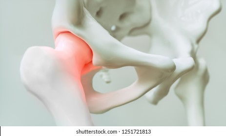 Hip pain from arthrosis - 3D Rendering