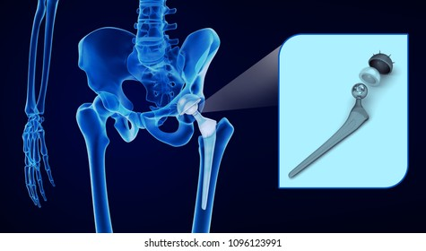 Joint Replacement Images, Stock Photos & Vectors | Shutterstock