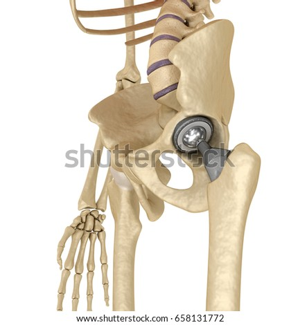 Hip Replacement Implant Installed Pelvis Bone Stock Illustration ...