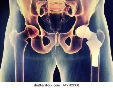 Hip replacement. Xray. Human anatomy. 3D illustration