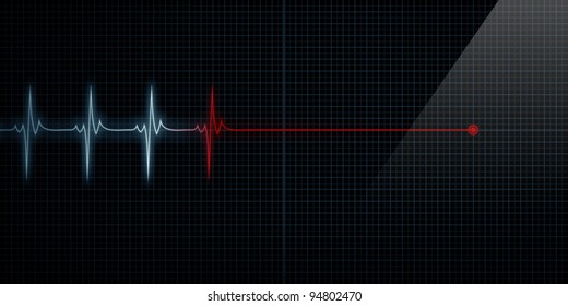Horizontal Pulse Trace Heart Monitor At Death