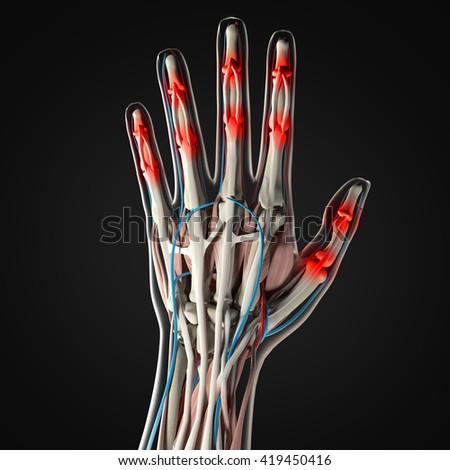 Human Anatomy Hand Arthritis Joint Pain Stock Illustration 419450416