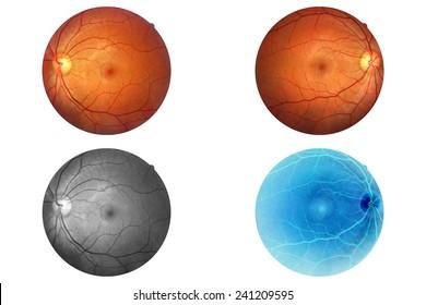 Human eye anatomy taking images with Mydriatic Retinal cameras