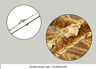Human hair with dandruff, close-up view, photo under microscope and 3D illustration